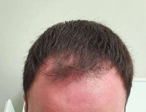 Formen des plötzlichen Haarausfalls