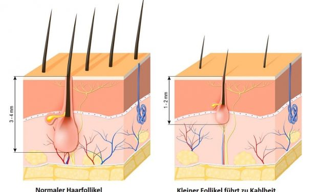 Haarausfall mit Wurzel – ein Alarmsignal