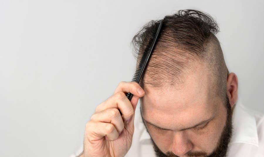 Plötzlicher Haarausfall – jetzt besteht Handlungsbedarf!