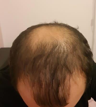 Plötzlicher Haarverlust und die Ursachen