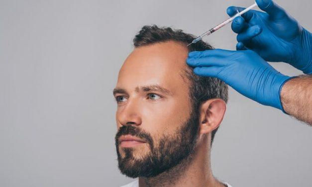 Spritzentherapie gegen Haarausfall – die individuelle Behandlung
