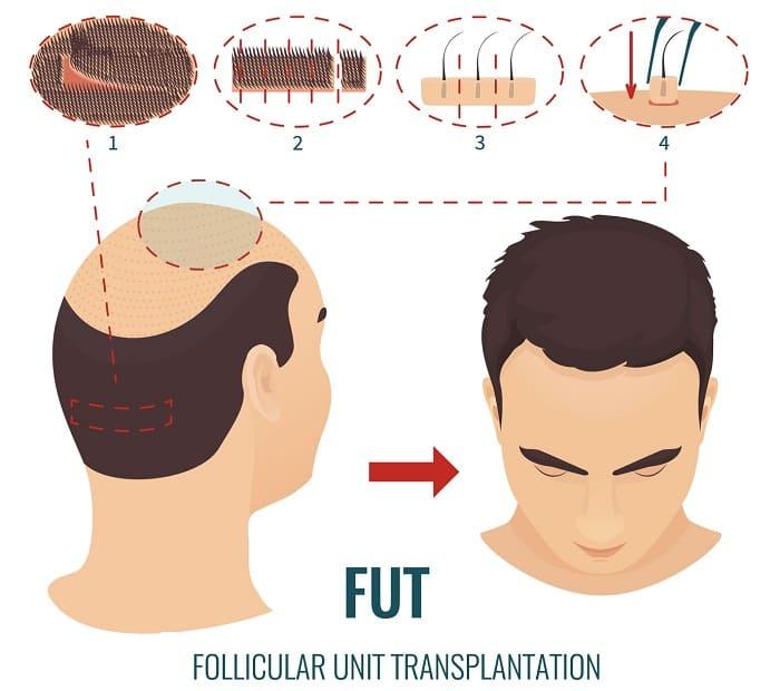 FUT Haartransplantation