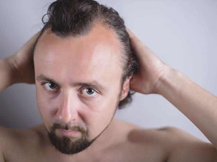 Haarausfall durch Zinkmangel