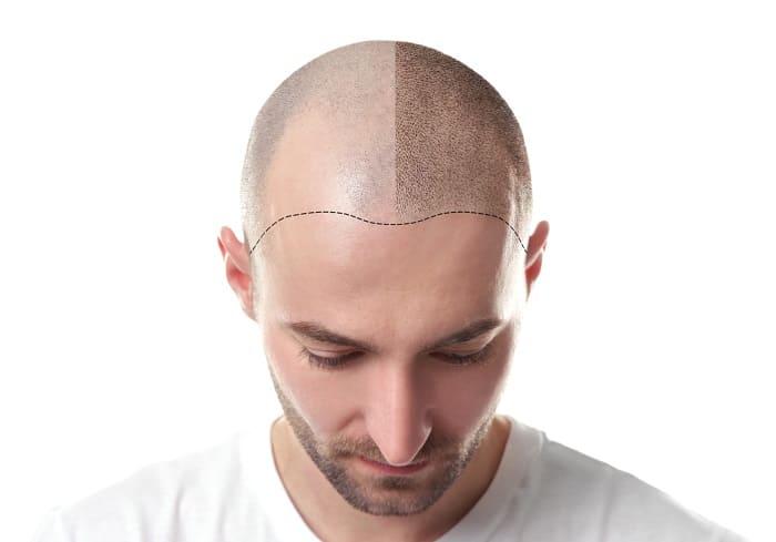 Haltbarkeit der Haarpigmentierung