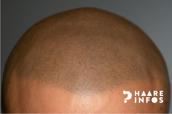 Haarpigmentierung