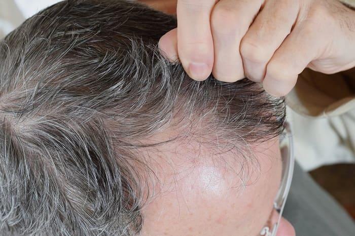 Mann gutachtet seine graue Haare