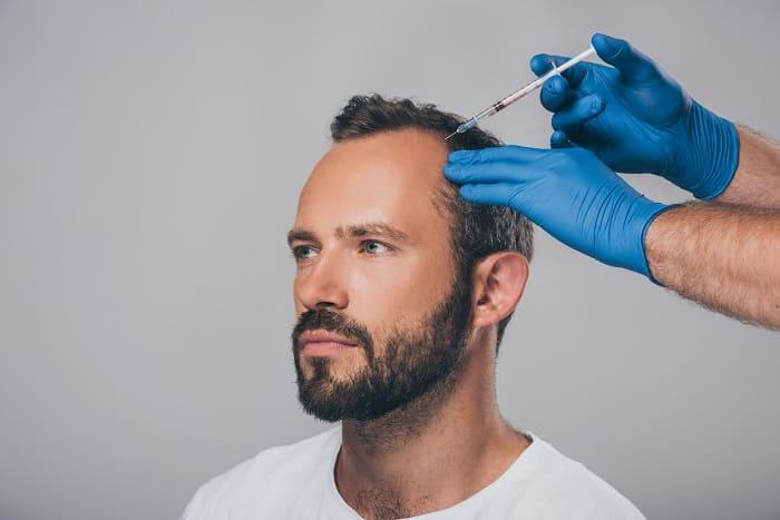 PRP Behandlung bei Haarausfall