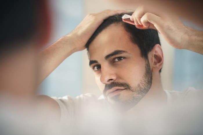 Tipps gegen Haarausfall bei Männer